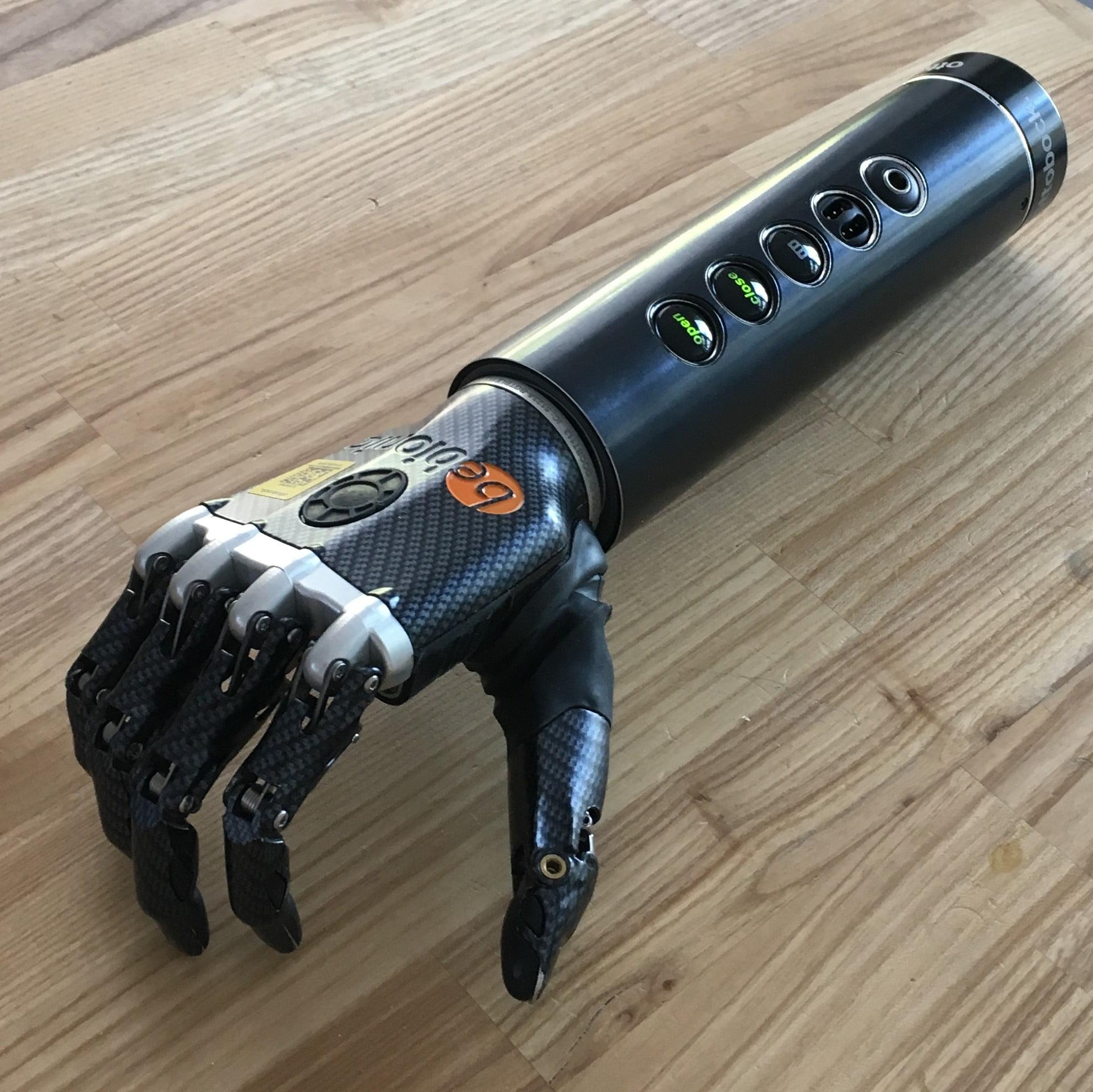 upper limb tech