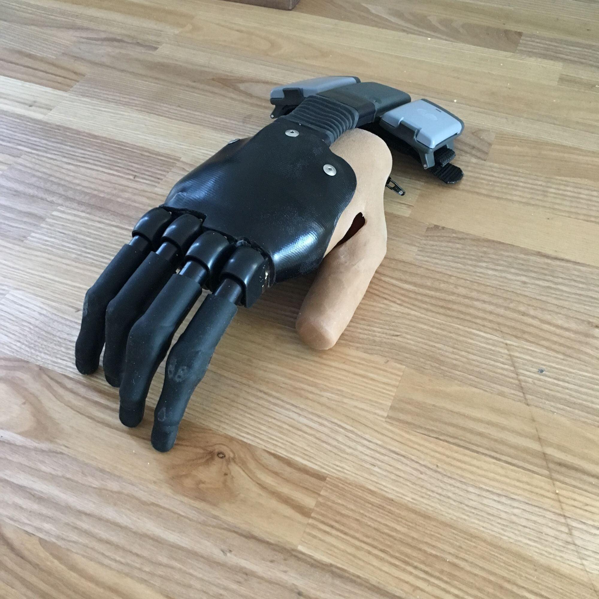 upper limb tech 2